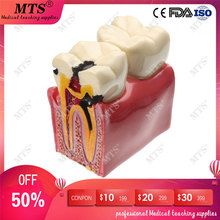 где купить 6 times Denture Teeth Model molar tooth contrast model Tooth Decay oral Dentist Pathologies teaching equipment по лучшей цене