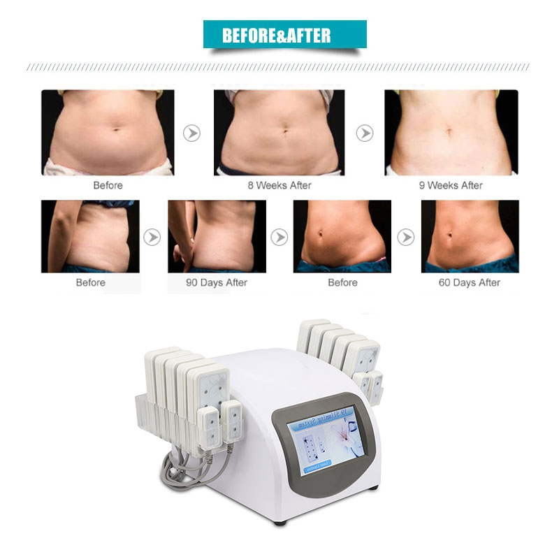 lipo laser slimming machine (2)