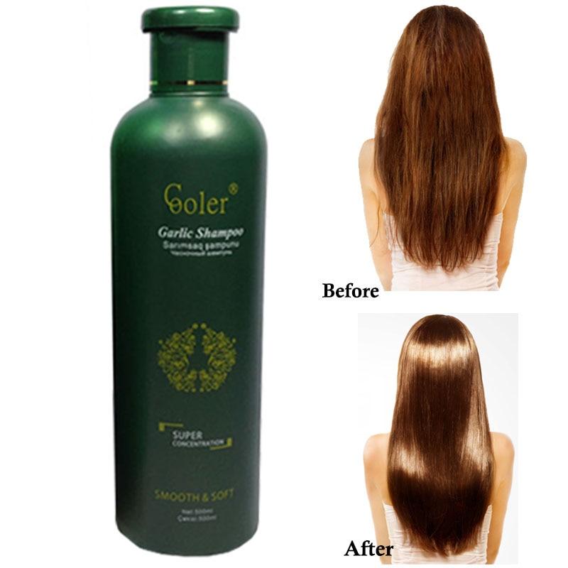 Сарымсақ Шаш Сусабыны Hair Growth - Шаш күтімі және сәндеу - фото 2