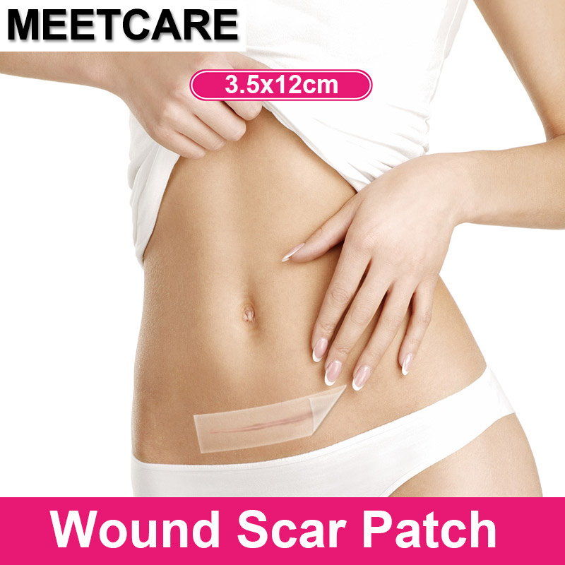 купить Medical Scar Away Silicone Gel Patch Wound Marks Removal Cesarean Section Hypertrophic Keloid Skin Scars Therapy For Care Beauty по цене 506.93 рублей