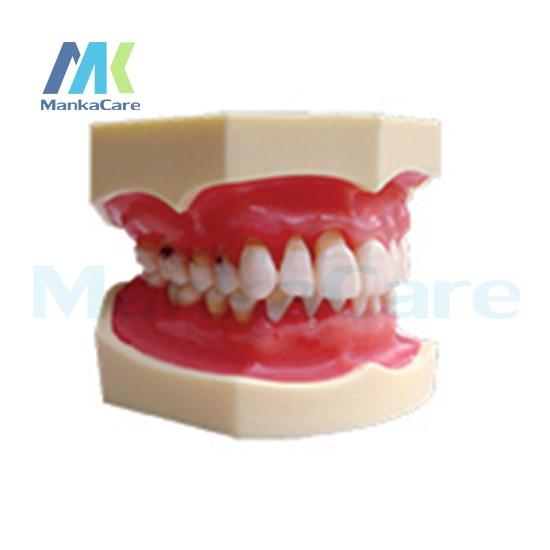 Manka Care -  Peridontal Disease Model Oral Model Teeth Tooth Model nakanishi long term care of parkinson s disease pr only symp tokyo april 1987