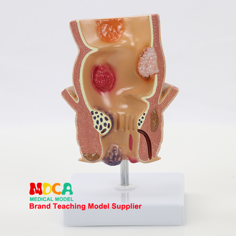 Rectal Model Colon Demonstration Model Teaching Medical Anorectal Medicine MCW007