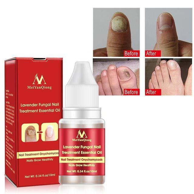 New Chinese Cream Nails Finger Toe Protector Fungus Treatment Herb Health Tools Onychomycosis Paronychia Infection Skin Care