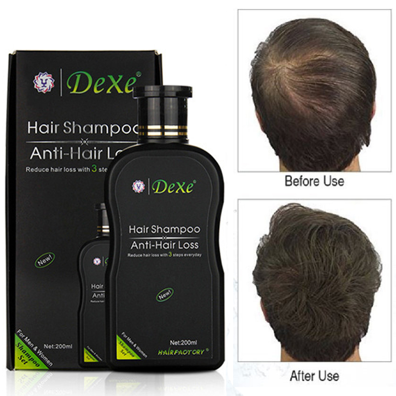 все цены на 200ml Dexe Hair Shampoo Set Anti-hair Loss Chinese Herbal Hair Growth Tonic Thickener Hair Product for repair Treatment unsex онлайн
