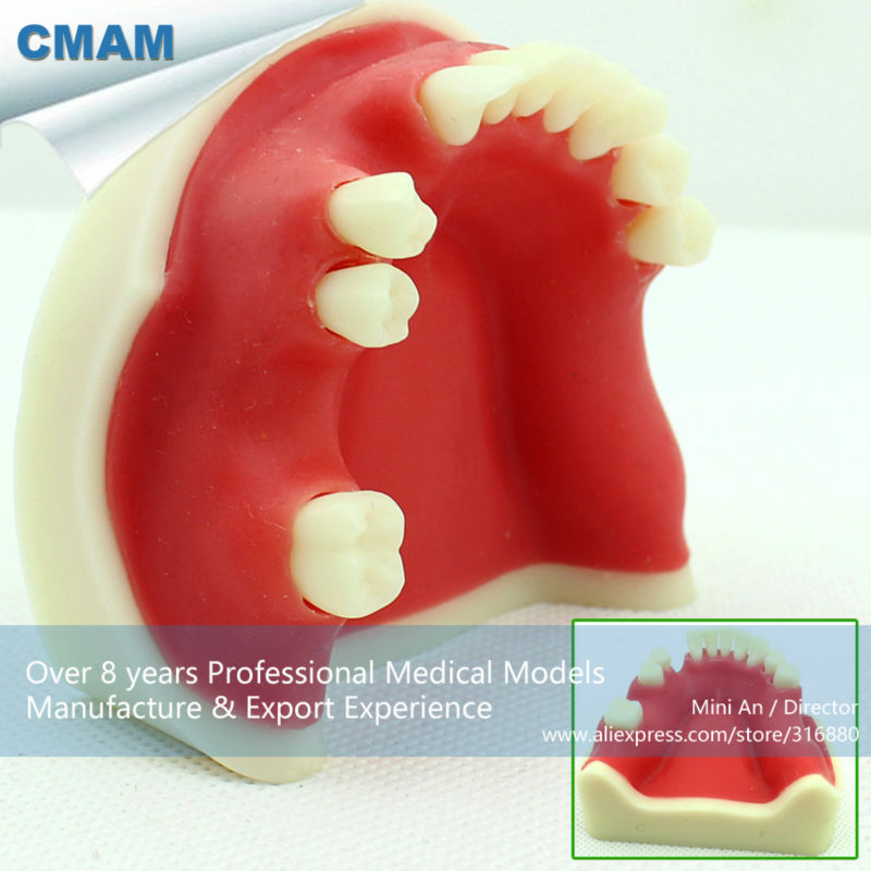 12614 CMAM-IMPLANT04 Bone Graft Practice Jaw Model for Implant Insertion Practice teeth orthodontic model ceramic braces wrong jaw demonstration model orthodontics practice model
