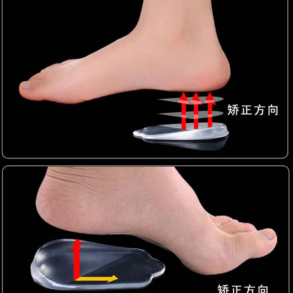 New 1 Pair Silicone Gel Orthopedic Insoles Back Pad Heel Cup For Calcaneal Pain Health Feet Care Support Spur Feet Cushion Pads