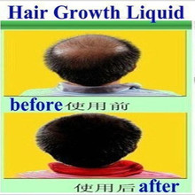 Hair Growth anti Hair Loss Liquid 20ml dense hair fast sunburst hair growth grow invalid refund alopecia