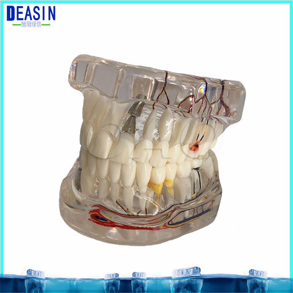 2018 Dental Implant Teeth Dental Pathological Teeth Implant Model Teaching Teeth Model & Restoration Bridge Tooth demonstration dental study tooth transparent adult children pathological teeth model lab equipment dentist teaching