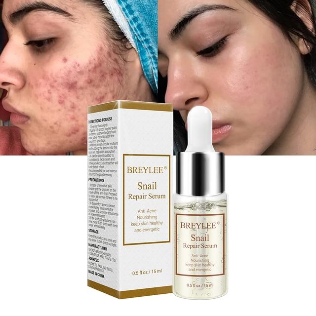BREYLEE Caracol Soro de Reparação Anti-Acne Rejuvenescimento Essência Hidratante Nutritivo Líquido de Tratamento de Cicatrizes de Acne Rosto Cuidados Com A Pele