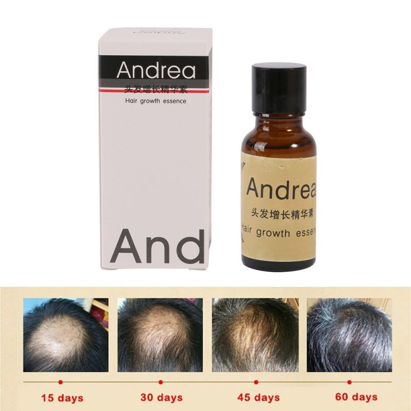 Andrea Hair Growth Oil Liquid Natural Plant Formula Hair Growth Serum Essence Anti Hair Lo