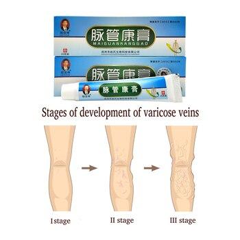 Pacote 10 Varicosity Médica Varizes Creme de Tratamento Anti Perna Pé Vasculite Flebite Produto À Base de Plantas De Gesso Médica