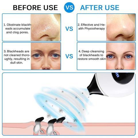 noily vacuo dos poros cravo remover acne