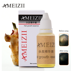 AMEIZII Hair Growth Essence Hair Loss Liquid 20ml dense hair fast sunburst hair growth grow Restoration pilatory