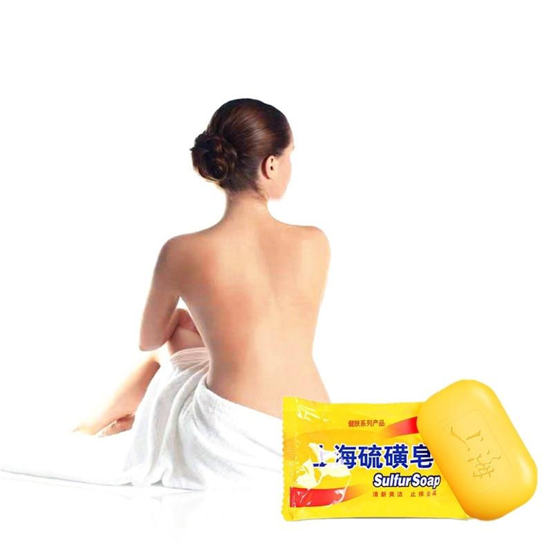 Powerful Sulfur Soap Remove Dead Skin Goose Bumps Pimples Foliculitis Whole Anti Fungus Body Whitening Sulfur Soap