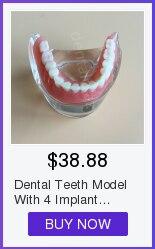 Modelo dental dos dentes da doença do