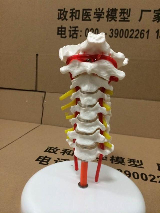 Modelo de columna cervical con cuello arteria occipital disco ...