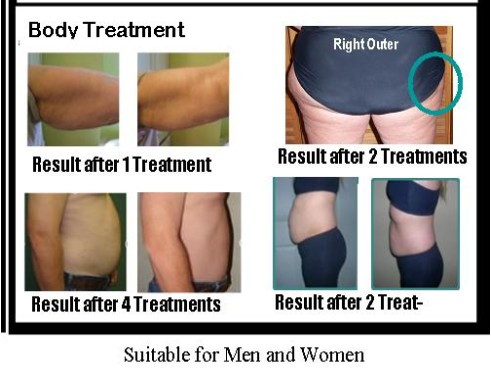 5 pcs Neutriherbs Body Applicator Skin Tightening, Firming Cream It Works to Stretch Marks Removal Weight Loss 3