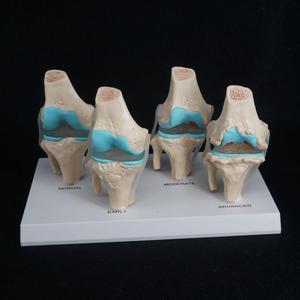 Image 1 - 해부학 적 인간 퇴행성 무릎 관절 질환 모델 의료 해골 해부학 교육 자원