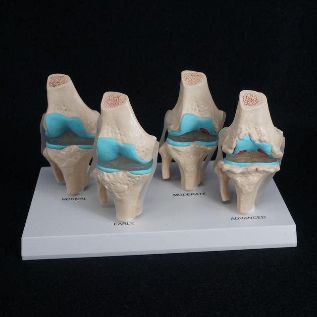 해부학 적 인간 퇴행성 무릎 관절 질환 모델 의료 해골 해부학 교육 자원