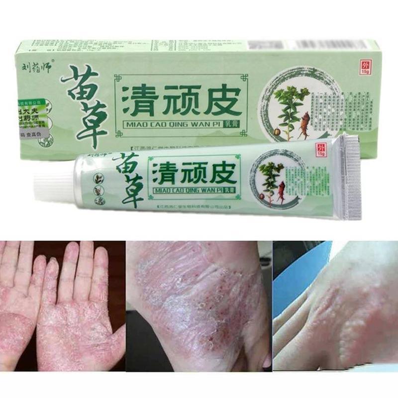 1pc Herbal Psoriasis Ointment Dermatitis Eczema Treatment Skin Cream Antibacterial Anti Inflammatory Pain Relief Cream