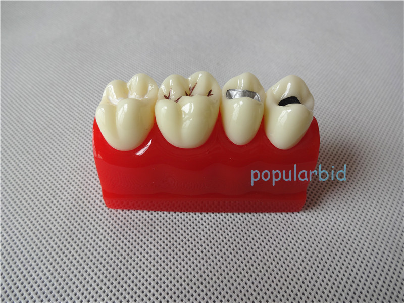 Dental Pit and Fissure Sealing Treatment Teeth Tooth Study Learn Model 2016 dental tooth root canal treatment model transparent tooth roots staining medullary cavity endodontic tooth model endo teeth