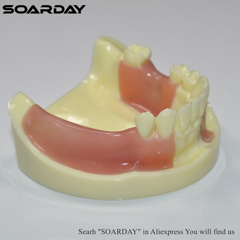 SOARDAY 1pc Implant Practice Model Different Tooth Missing with Imitation Bone Structure Silicone soarday implant