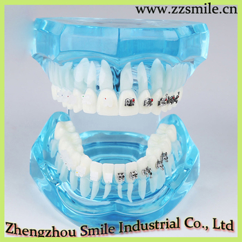 Orthodontic Plastic Tooth Model With Metal And Ceramic Bracket