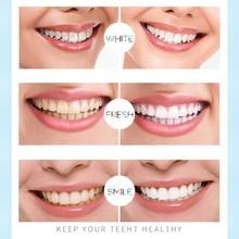 Vaclav Tooth Whitening Pen Kit Gel Strip Pen Teeth White Gel Tooth Gel Whitener Bleach Remove Stains Eraser Oral Hygiene