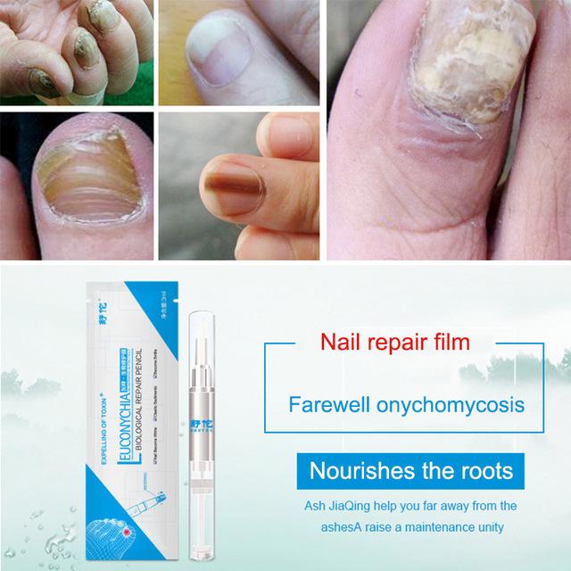 Onychomycosis Repair Pen