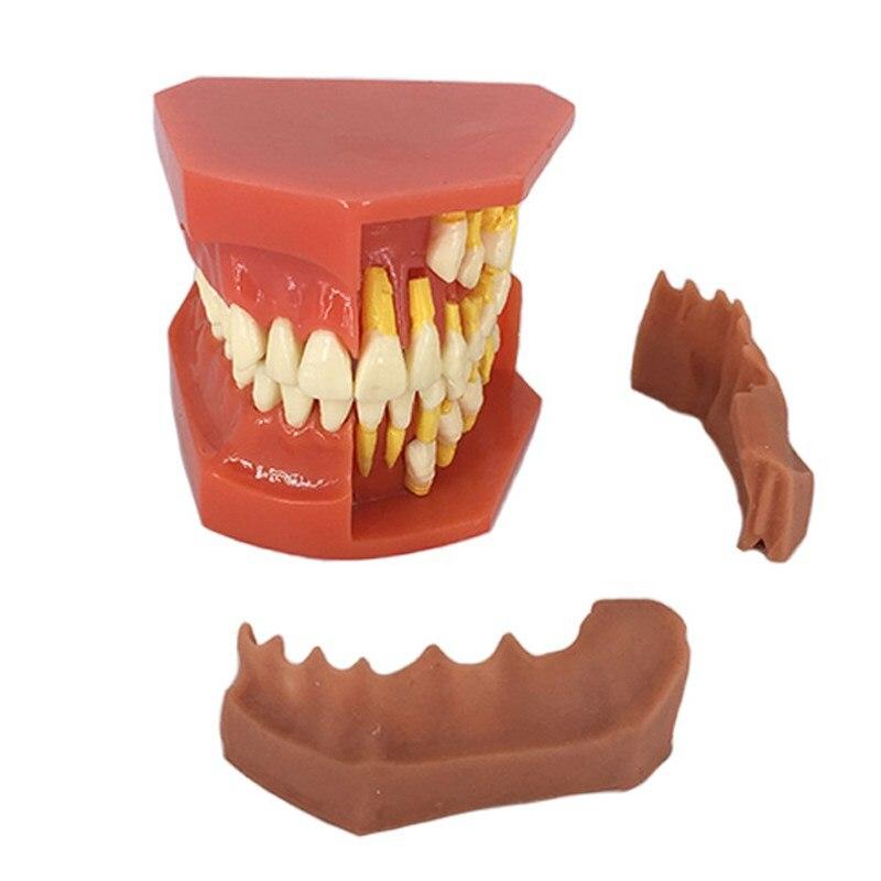 Modèle de dent permanente pour enfants modèle alternatif de dents à feuilles caduques démonstration amovible pour les enfants qui étudient