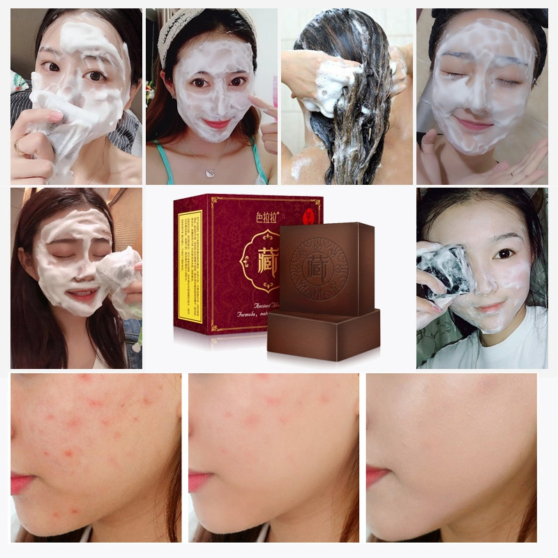 2019 Face Body Wash Soap Pimple Pores Blackhead Removal Treatment Oil Control Moisturizing 100g