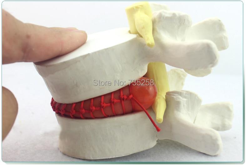 Human Lumbar Disc Demonstration Model,Lumbar Disk Disease Model,Lumbar Spine Model spine orthopedics human anatomy medicine demonstration model of human lumbar disc disease gasencx 0024
