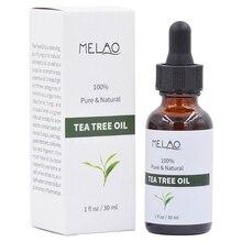 Чистый чай дерево эфирное масло для лечения акне против морщин жир увлажняющий масло-контроль Сужающий поры лица-красота масло