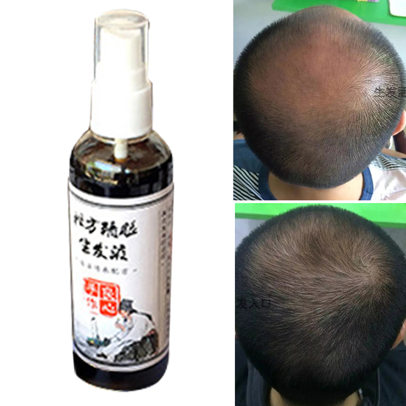 Buy Advanced Shou Wu for Gray Hair Prepared Chinese Herb Stimulates Hair Growth 700mg Tablets All the Benefits of Original He Shou Wu Plus 10 More Hair