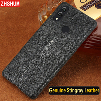 Genuine Stingray Skin Case For Huawei P20 Lite Luxury Leather Handmade Customize Case Full Back Cover for Honor Note 10 Note10
