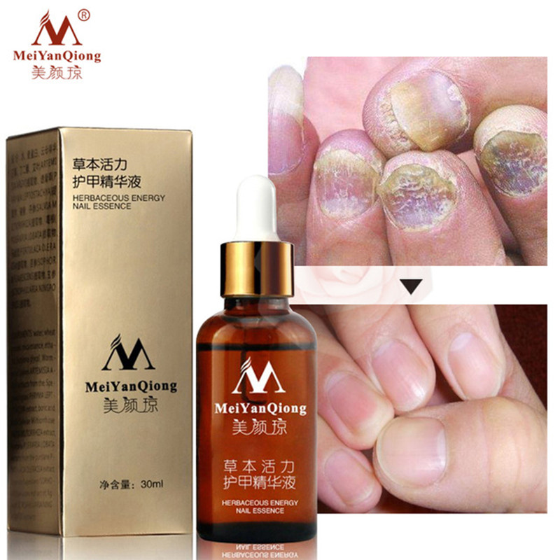 MeiYanQiong Hotest Nail Care Treatment Plant Energy Nail Essence Anti Infection Paronychia Onychomycosis Toe Nails Removal Gel