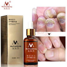 MeiYanQiong Hotest Nail Care Treatment Plant Energy Nail Essence Anti Infection Paronychia Onychomycosis Toe Nails Removal Gel(China)