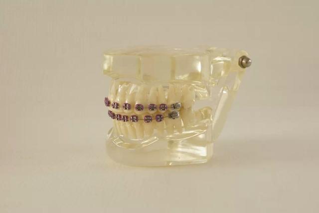 Boa Qualidade Dental Ortodontia Typodont modelo Dentes Metade De Metal Meia Cinta Cerâmica com Arch Fio