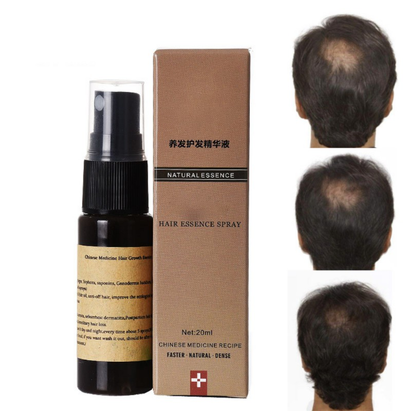 US $1 9 17% OFF Organic Fast Hair Growth Essence Liquid Products Pilatory  Anti Gray Hair Spray Shampoo Serum Hair Loss Treatment 2018-in Hair Loss