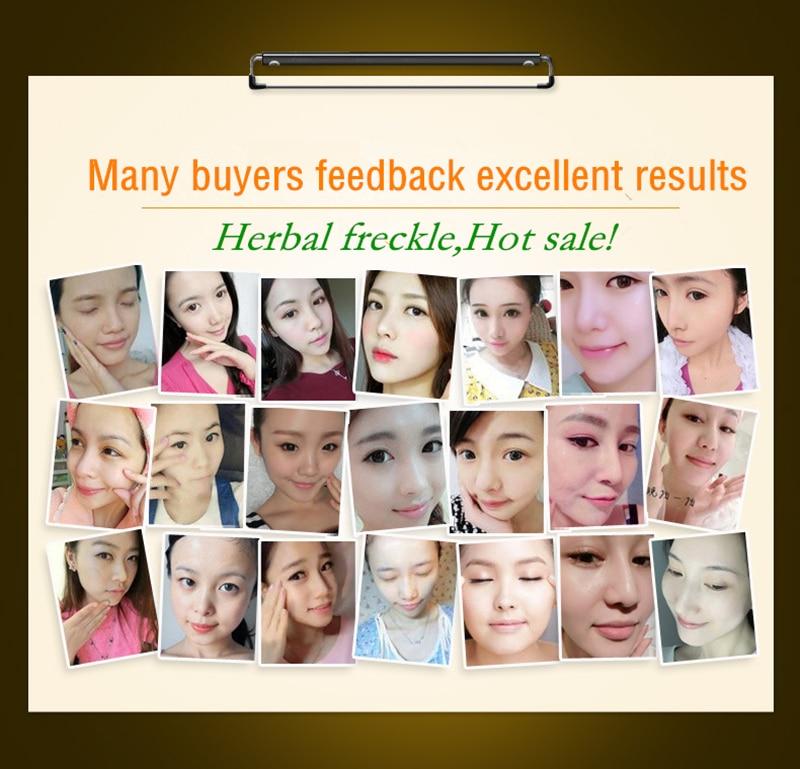 Купить с кэшбэком Dimollaure99% Kojic Acid powder whitening cream 30g Wrinkle removal Freckle melasma Acne scars pigment age spot melanin sun spot