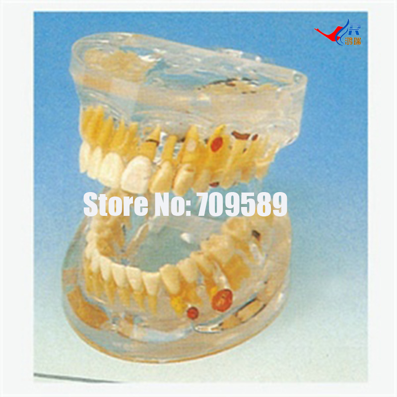 Transparent Dental Pathology Model, Dental Care Model transparent dental pathology model dental care model