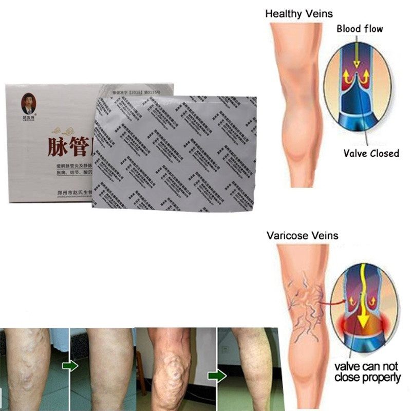 Anyone Care Chinese herbal Varicose Veins Treatment patch Leg Acid Bilges Itching Earthworm Lumps Old Bad