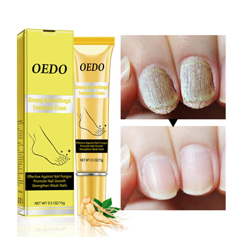 Profession Ginseng Nail Treatments Cream Remove Onychomycosis Fungus Paronychia Promote Nail Growth Foot Cream Nail Care TSLM1