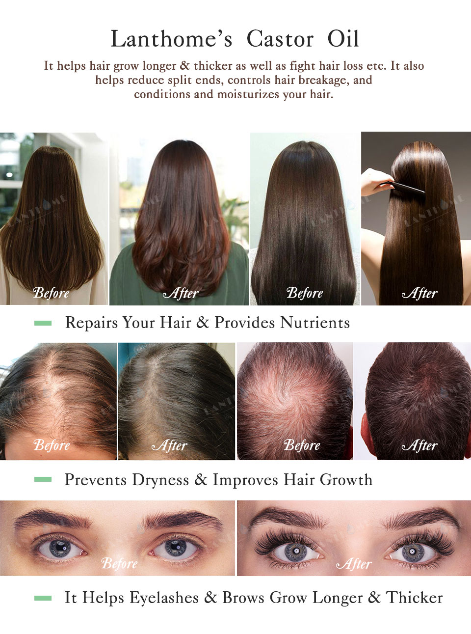 black castor oil hair growth before and after pure castor oil hair growth serum cool trending club