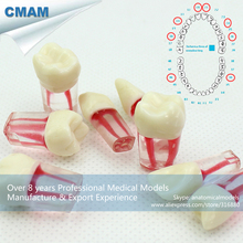 CMAM-TOOTH04-1 Stained Root Canal Endodontic Tooth Model 8pcs/set ,Endo teeth
