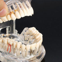 Dental Implant Disease Teeth Model with Restoration Bridge Tooth Dentist for Medical Science Dental Disease Teaching Study teeth model dental periodontal disease practice dental model with tartar