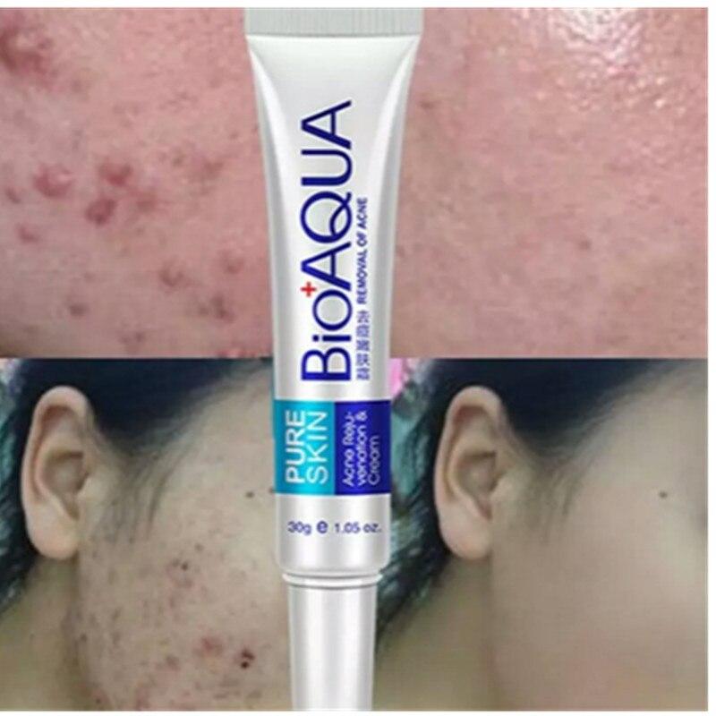 1PC Skin Care 30g Acne Treatment Blackhead Remova Anti Acne Cream Oil Control Shrink Pores Acne Scar Remove Face Care Whitening