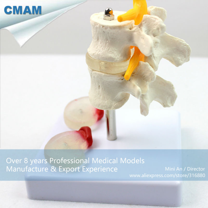 12391 CMAM-VERTEBRA07 Lumbar Vert with Discs, Normal, Central Herniation and Dorsal Herniation, Lumbar Disc Herniation Model clinical significance of electro diagnosis in disc herniation