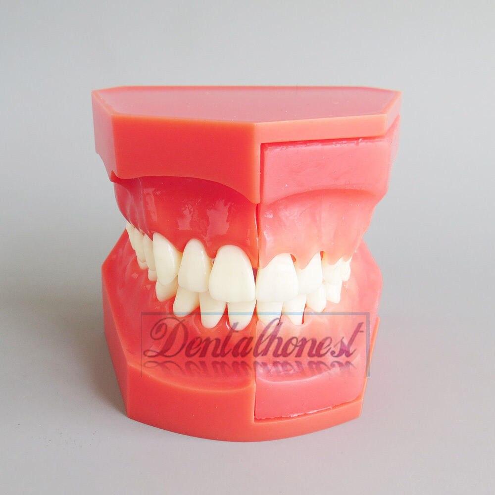 Modèle dentaire #4006 01-modèle de développement d'éruption des dents 2017 nouveau modèle