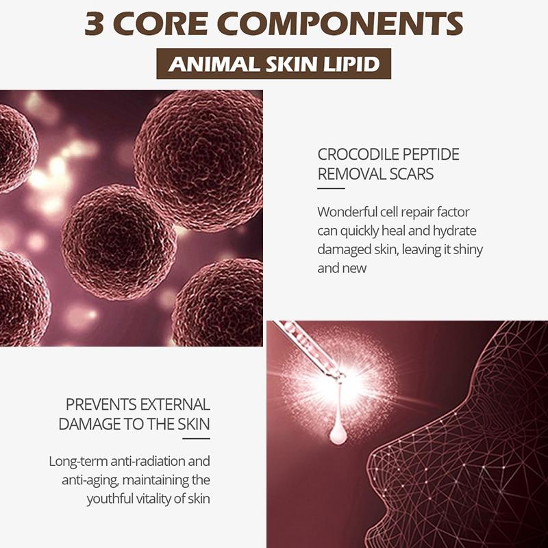Crocodile Repair Scar Cream Removal Scar Acne Treatment Marks For